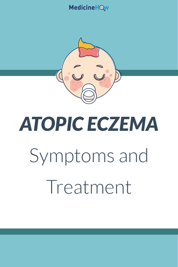 Atopic Eczema Symptoms and Treatment