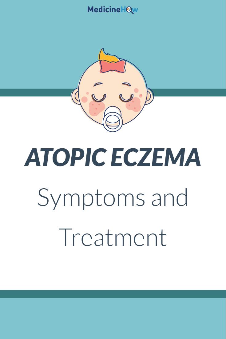 medical atpoic eczema