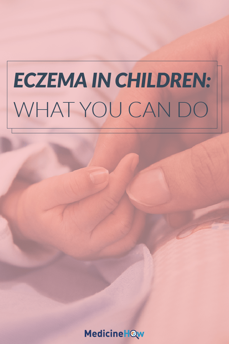 Eczema in Children: What You Can Do